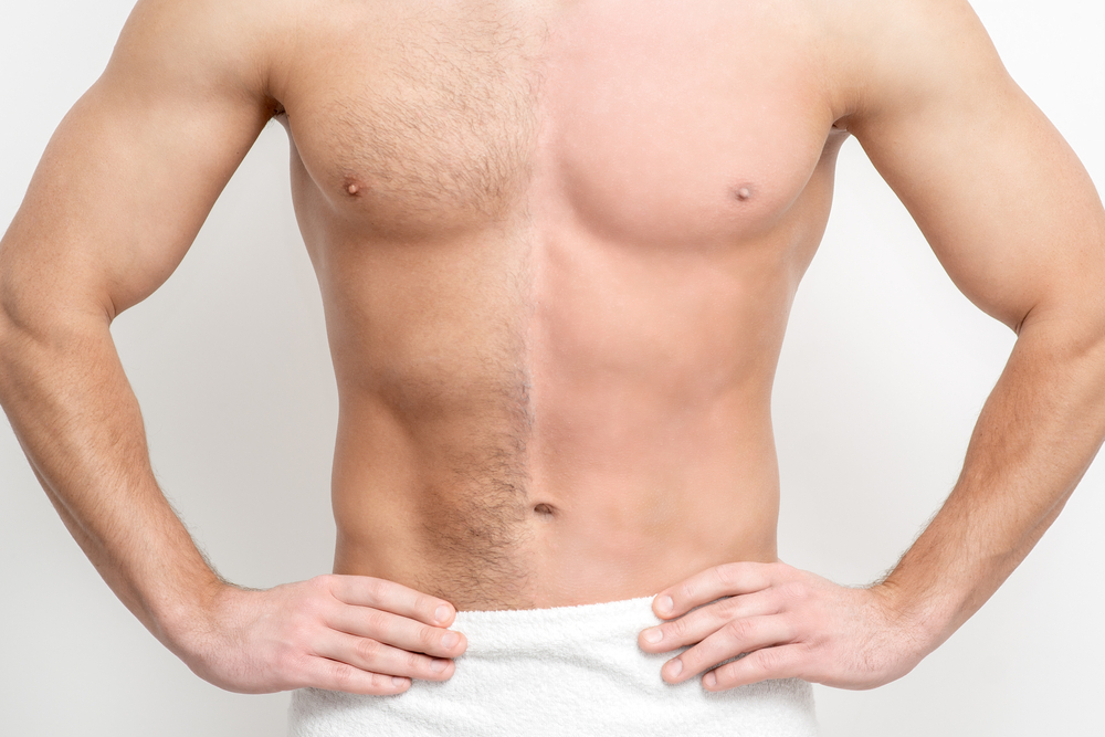 Before and After Man Receives Laser Hair Removal